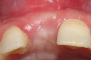 Carlsbad Dental Associates - Bone Grafting