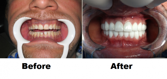 Before and After Smile Gallery